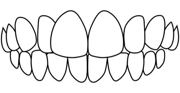 idental-cross-bite-treatment