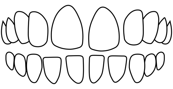 idental-Gappy-teeth