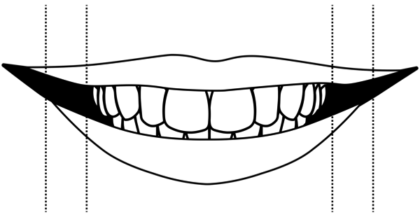 idental-narrow-bite-treatment