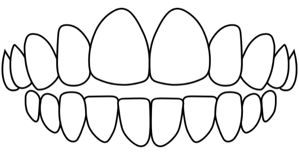 idental-open-bite-treatment