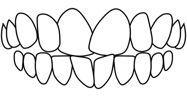 idental-Rotated-teeth