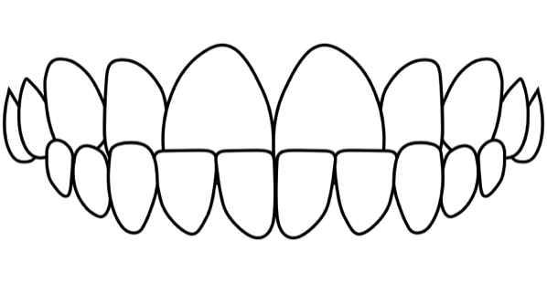 idental-underbite-treatment