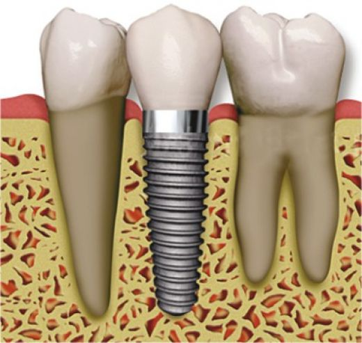 idental_porcelain_crowns_implant_1