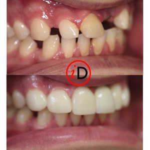 idental_before_after_smile_4