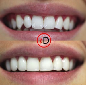 idental_before_after_smile_5