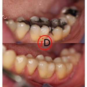 idental_before_after_smile_9